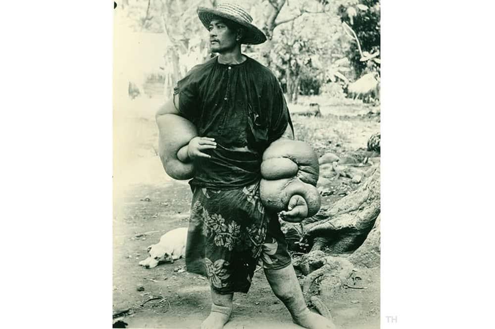 Cas d'éléphantiasisme à Tahiti vers 1950